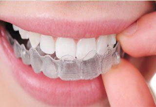 https://www.dentistasecija.es/wp-content/uploads/2015/11/ortodoncia-ecija-320x219.jpg