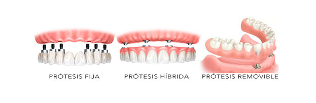 https://www.dentistasecija.es/wp-content/uploads/2017/03/1-protesis-implantes-ecija.jpg