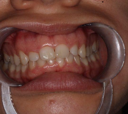 https://www.dentistasecija.es/wp-content/uploads/2017/03/ALARGAMIENTO-CORONARIO-1-540x480.jpg