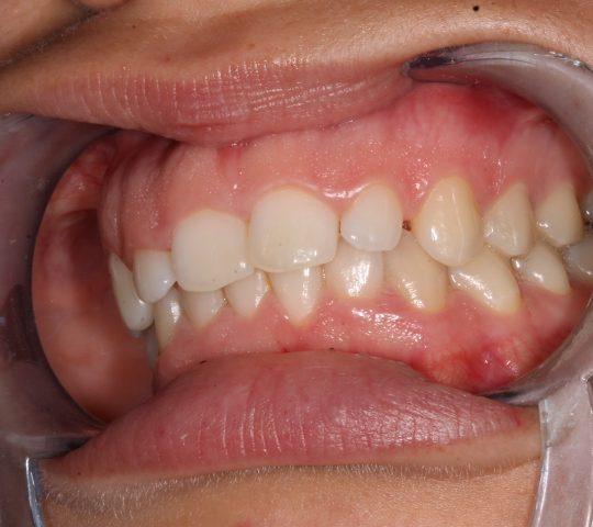 https://www.dentistasecija.es/wp-content/uploads/2017/03/ALARGAMIENTO-CORONARIO-12-540x480.jpg