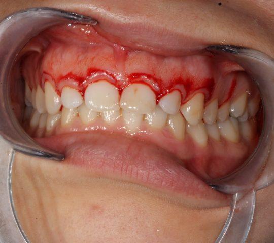 https://www.dentistasecija.es/wp-content/uploads/2017/03/ALARGAMIENTO-CORONARIO-2-540x480.jpg
