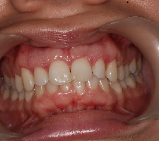 https://www.dentistasecija.es/wp-content/uploads/2017/03/ALARGAMIENTO-CORONARIO-7-540x480.jpg