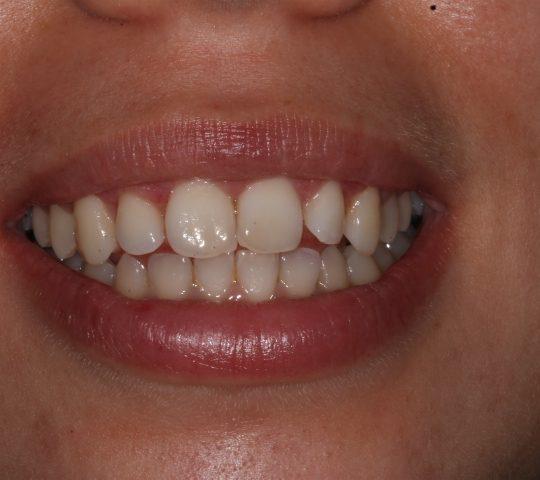 https://www.dentistasecija.es/wp-content/uploads/2017/03/ALARGAMIENTO-CORONARIO-8-540x480.jpg
