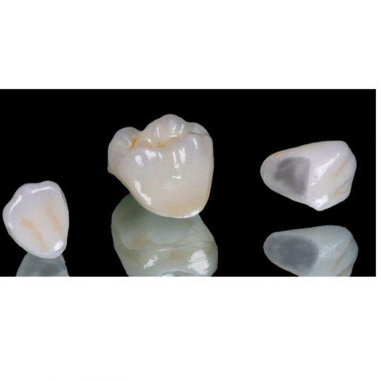 https://www.dentistasecija.es/wp-content/uploads/2017/03/Coronas-E-Max-estetica-dental1-540x540.jpg