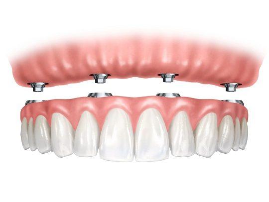https://www.dentistasecija.es/wp-content/uploads/2017/03/HIBRIDA-1-540x406.jpg
