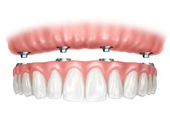 https://www.dentistasecija.es/wp-content/uploads/2017/03/HIBRIDA-540x406.jpg