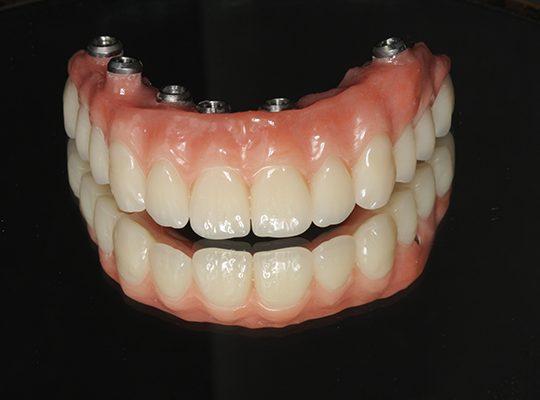 https://www.dentistasecija.es/wp-content/uploads/2017/03/HIBRIDA-COMPOSITE-540x400.jpg