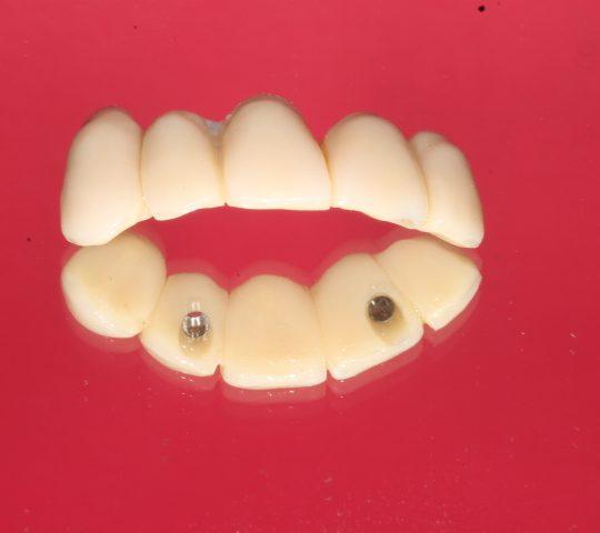 https://www.dentistasecija.es/wp-content/uploads/2017/03/IMG_6280-540x480.jpg