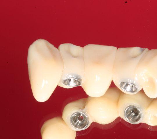 https://www.dentistasecija.es/wp-content/uploads/2017/03/IMG_6281-540x480.jpg