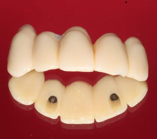 https://www.dentistasecija.es/wp-content/uploads/2017/03/IMG_6282-540x480.jpg