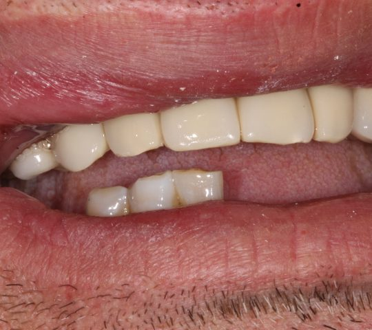 https://www.dentistasecija.es/wp-content/uploads/2017/03/IMG_6287-540x480.jpg
