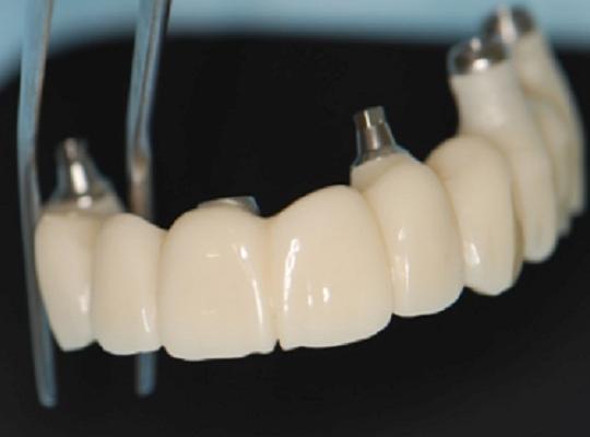 https://www.dentistasecija.es/wp-content/uploads/2017/03/METAL-CERAMICA-IMPLANTES-1-540x400.png