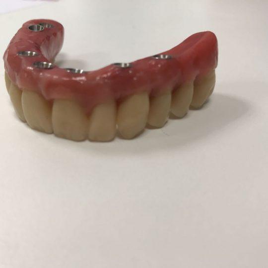 https://www.dentistasecija.es/wp-content/uploads/2017/03/WhatsApp-Image-2018-02-02-at-08.04.01-540x540.jpeg