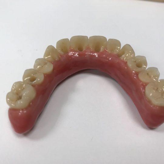 https://www.dentistasecija.es/wp-content/uploads/2017/03/WhatsApp-Image-2018-02-02-at-08.04.04-540x540.jpeg