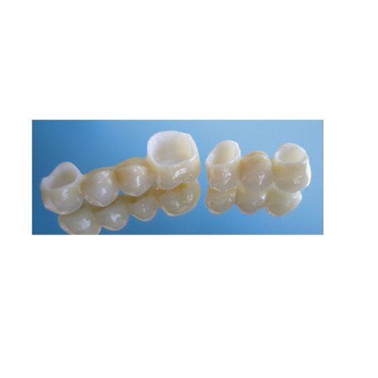 https://www.dentistasecija.es/wp-content/uploads/2017/03/cornas-de-zirconio1-540x540.jpg