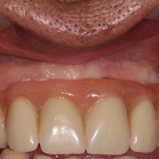 https://www.dentistasecija.es/wp-content/uploads/2017/03/dentadura-hibrida-sobre-implantes-540x540.jpg