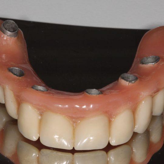 https://www.dentistasecija.es/wp-content/uploads/2017/03/dentadura-hibrida-sobre-implantes1-540x540.jpg