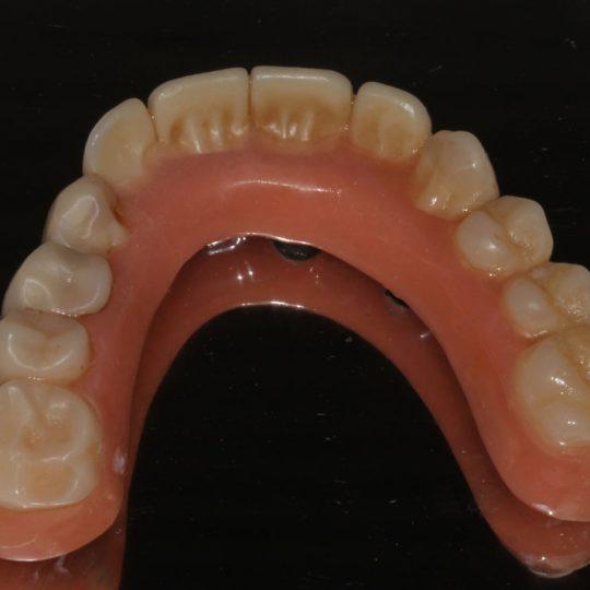 https://www.dentistasecija.es/wp-content/uploads/2017/03/dentadura-hibrida-sobre-implantes2-540x540.jpg