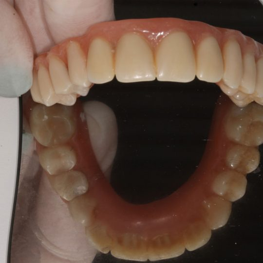 https://www.dentistasecija.es/wp-content/uploads/2017/03/dentadura-hibrida-sobre-implantes3-540x540.jpg