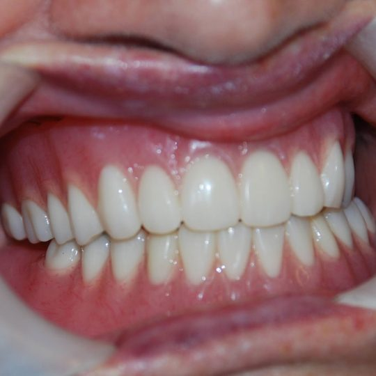 https://www.dentistasecija.es/wp-content/uploads/2017/03/dentadura-sobre-implantes-540x540.jpg