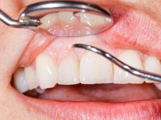 https://www.dentistasecija.es/wp-content/uploads/2017/03/dentistas-encias-ecija-320x240.jpg