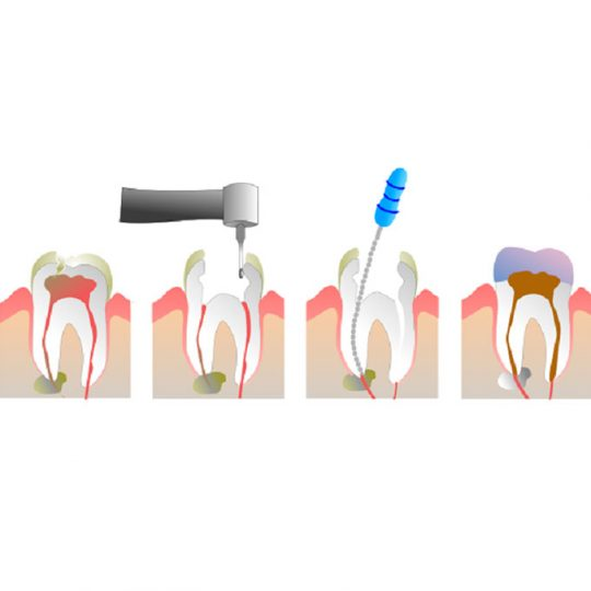 https://www.dentistasecija.es/wp-content/uploads/2017/03/endodoncia-1-540x540.jpg