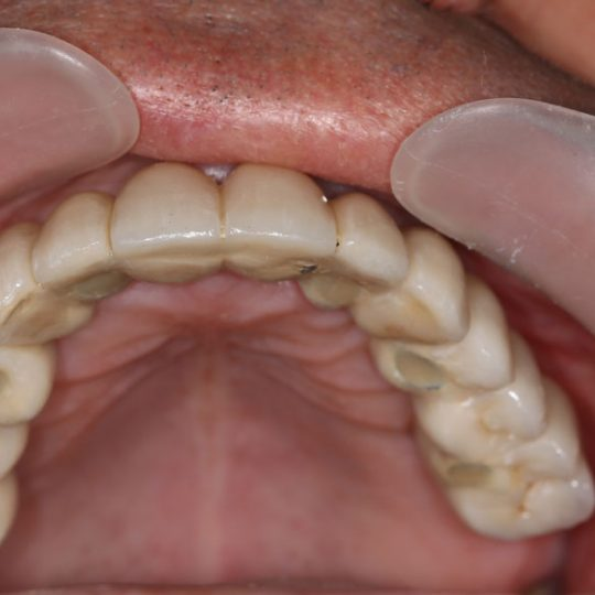 https://www.dentistasecija.es/wp-content/uploads/2017/03/implantes-dentadura-ecija1-540x540.jpg