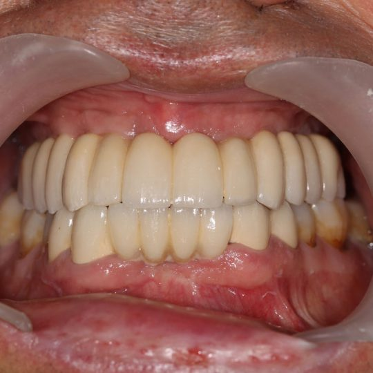 https://www.dentistasecija.es/wp-content/uploads/2017/03/implantes-dentadura-ecija2-540x540.jpg