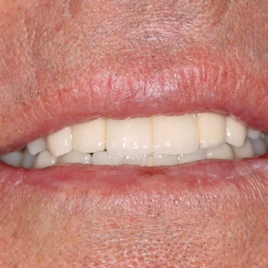 https://www.dentistasecija.es/wp-content/uploads/2017/03/implantes-dentadura-ecija3-540x540.jpg
