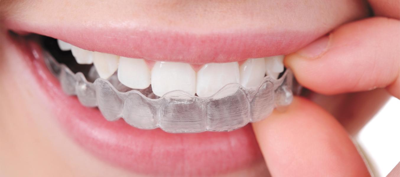 https://www.dentistasecija.es/wp-content/uploads/2017/03/ortodoncia-ecija.jpg
