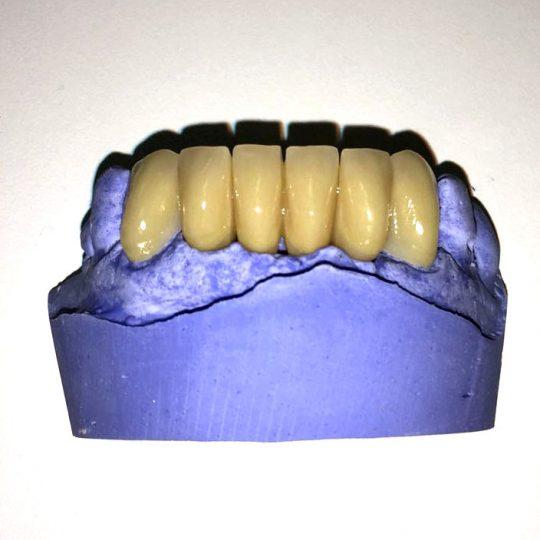 https://www.dentistasecija.es/wp-content/uploads/2017/03/provisional2-540x540.jpg