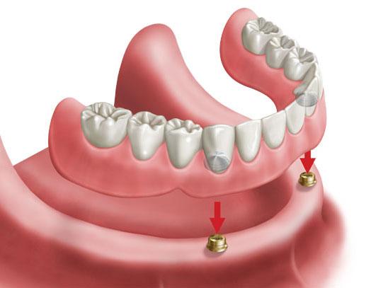 https://www.dentistasecija.es/wp-content/uploads/2017/03/sobredentadura2.jpg